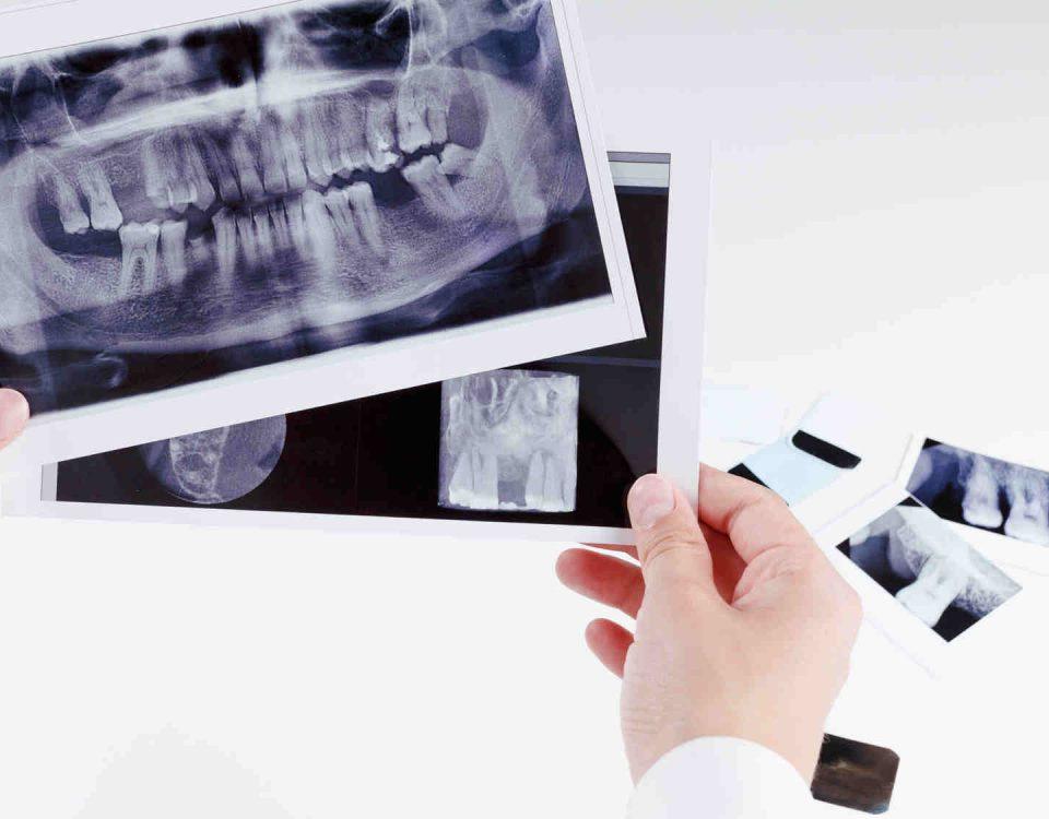 Dentysta Toruń - RTG zęba - gabinet stomatologiczny